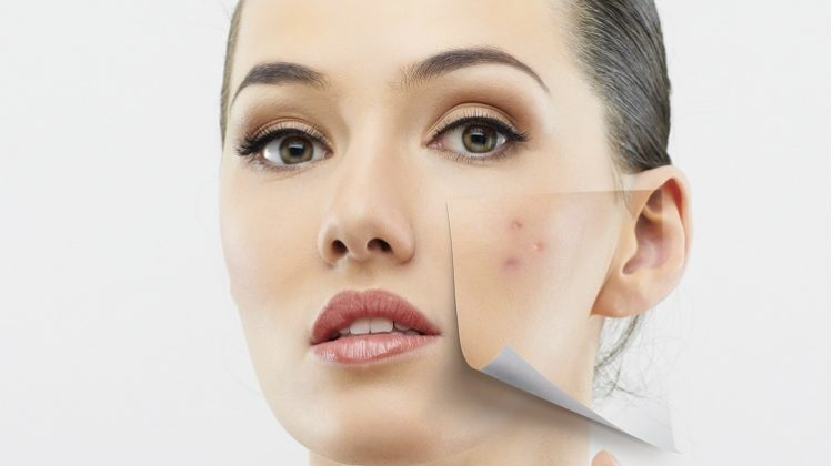 How To Cure Acne From Inside – A Secret That Really Works