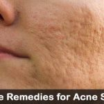 25 DIY Home Remedies for Acne Scars