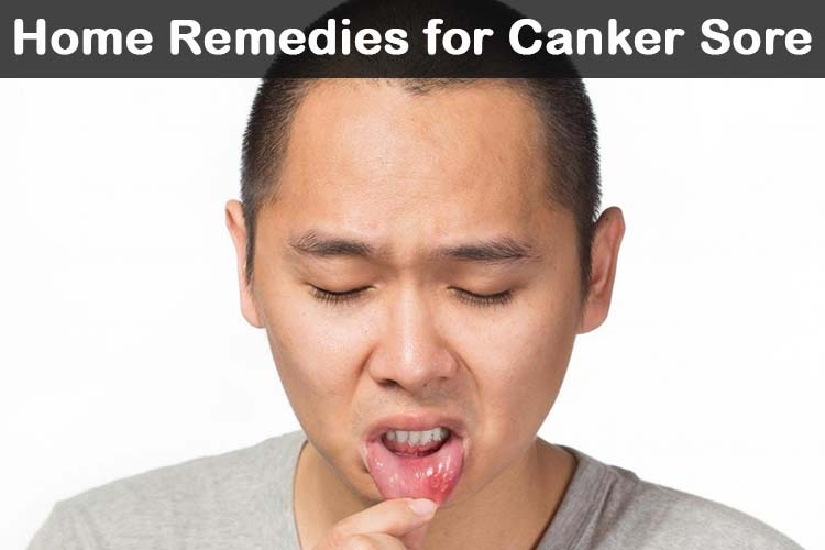 Home Remedies For Sore Throat And Ulcers