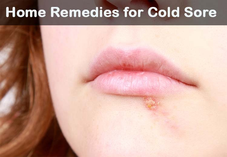 18 Diy Home Remedies For Cold Sore Treatment