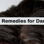 How To Get Rid Of Dandruff Naturally With Home Remedies & Dietary Solutions