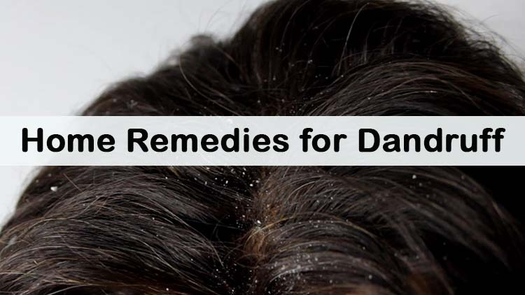 Top 5 Symptoms Of Dandruff