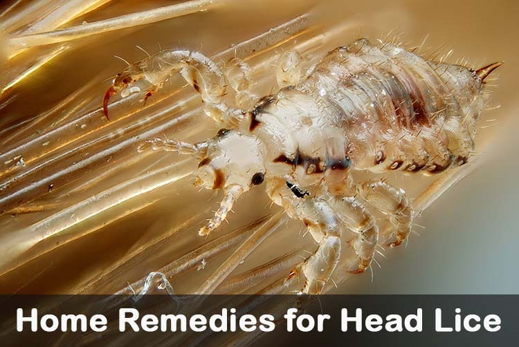 17 diy home remedies for head lice, Skeleton