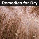Fast-Acting Dry Scalp Treatments: 31 Natural Home Remedies