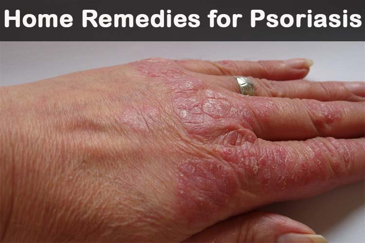 Anything that strengthens your immune system helps with psoriasis 2