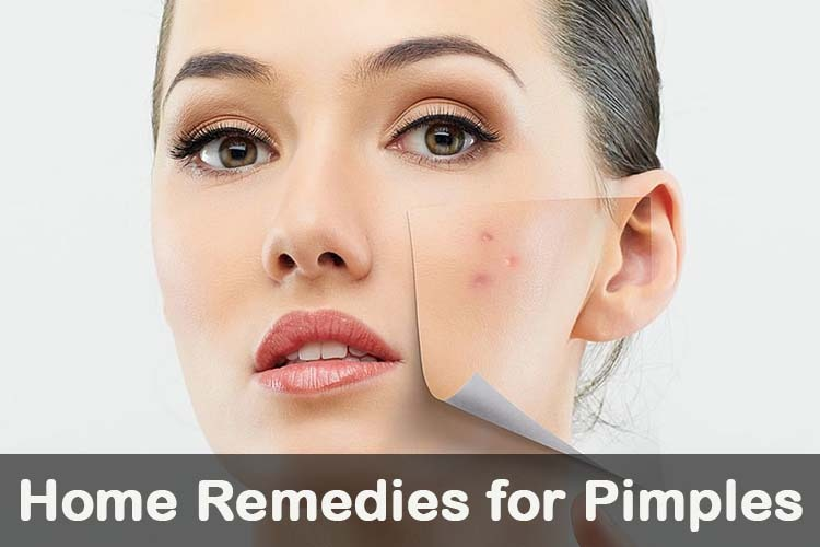 Natural Ways To Remove Pimples From Face