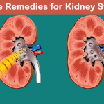 12 DIY Home Remedies for Kidney Stones