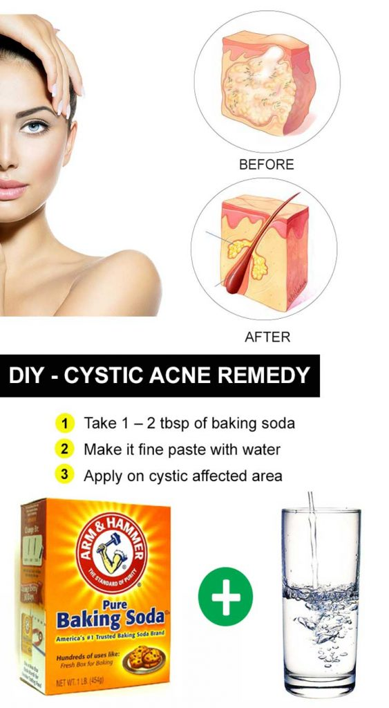 How to make inflammation go down acne