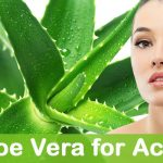 How To Use Aloe Vera For Pimples