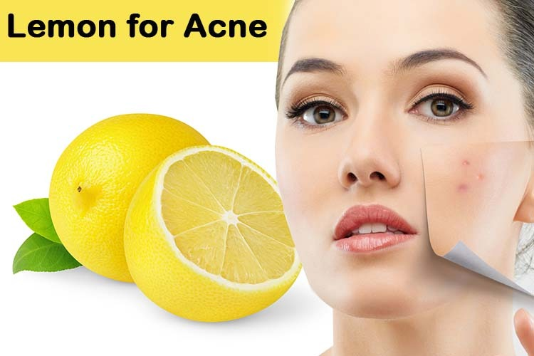 Will Lemon Juice Get Rid Of Acne