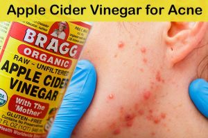 Apple Cider Vinegar for Acne: 10 Best Uses to Get Rid of