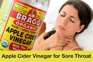 Apple Cider Vinegar for Sore Throat
