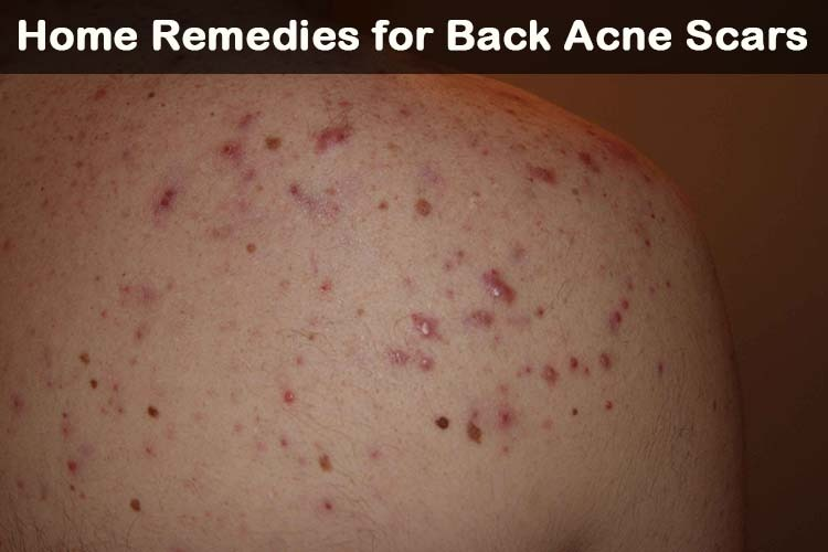 back acne scars