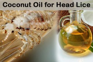 Coconut Oil for Head Lice