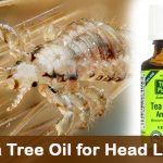 Tea Tree Oil for Head Lice