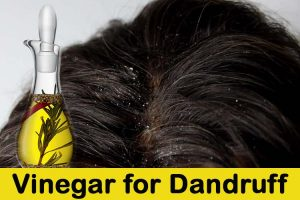 Vinegar for Dandruff