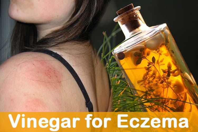 Vinegar for Eczema