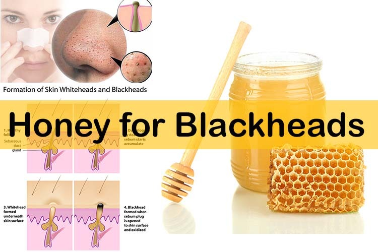 Natural Ways To Remove Blackheads Fast
