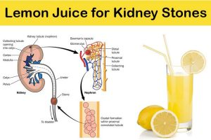 lemon juice for kidney stones