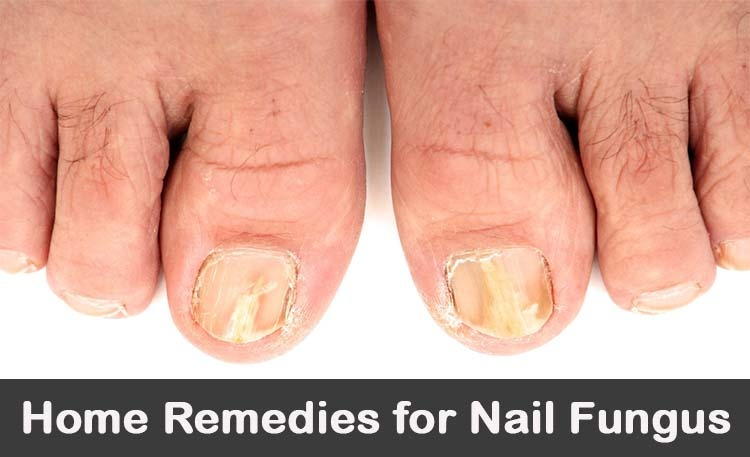 Home Remedies for Toenail Fungus | 20+ Treatments for Toes ...