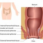 13 DIY Home Remedies For Hemorrhoids