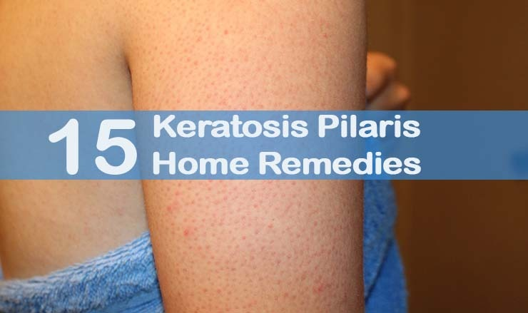 Get How Of Home Rid To Remedies Acne Arm