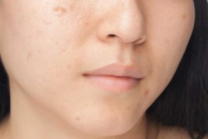 Chicken pox scars home remedies