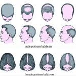 baldness / male and women