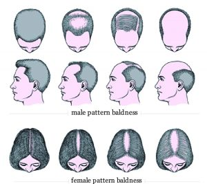 Home remedy for Baldness