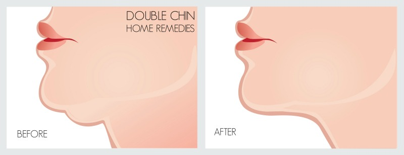 double chin home remedies