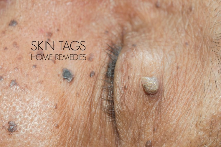 skin tags home remedies