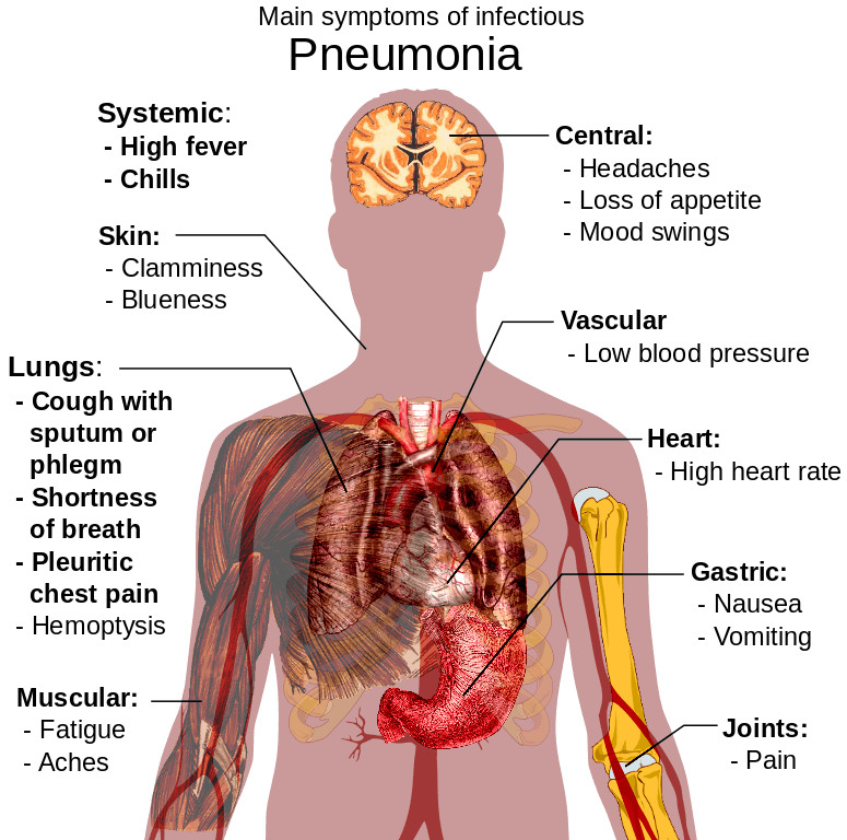 Pneumonia Baby Natural Treatment