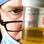 18 DIY Home Remedies For Pus Cells In Urine