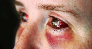 Home Remedy for Black Eyes