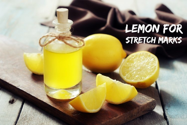 Lemon for Stretch Marks