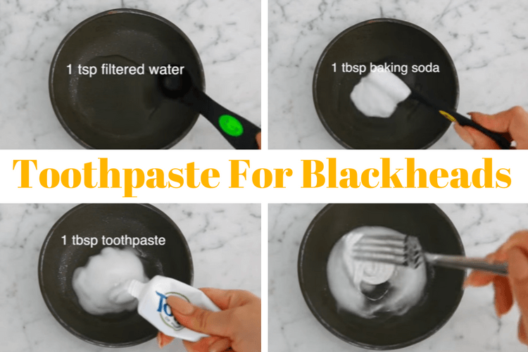 toothpaste for blackheads