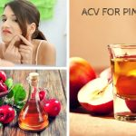 Apple-Cider-Vinegar-For-Pimples