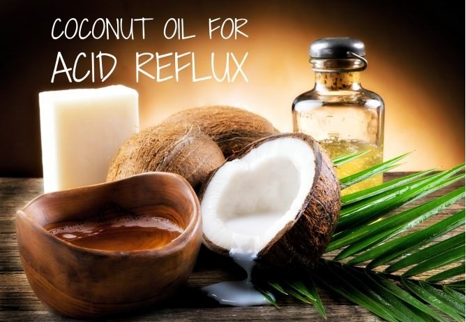 Coconut Oil for Acid Reflux
