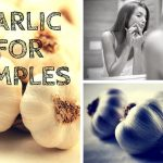 Garlic-for-Pimples