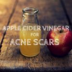 How to Cure Acne Scars Quickly with Apple Cider Vinegar