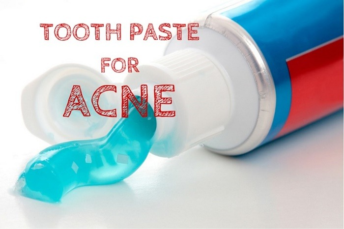 Home Remedies For Zits Toothpaste