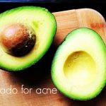 How to use Avocado for Acne?