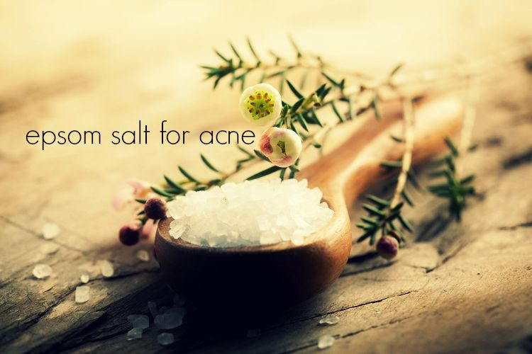 epsom salt for acne