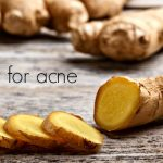 ginger for acne