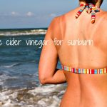 9 Effective Apple Cider Vinegar Remedies For Sunburn