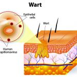 How to Get Rid of Warts Using Apple Cider Vinegar