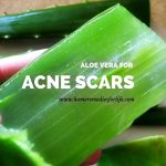 How To Use Aloe Vera For Acne Scars (9 Quick Ways)