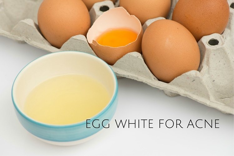 Egg White For Acne