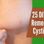 25 DIY Home Remedies for Cystic Acne