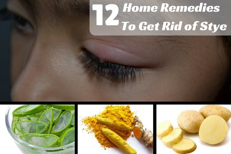 Home Remedies To Get Rid Of Stye